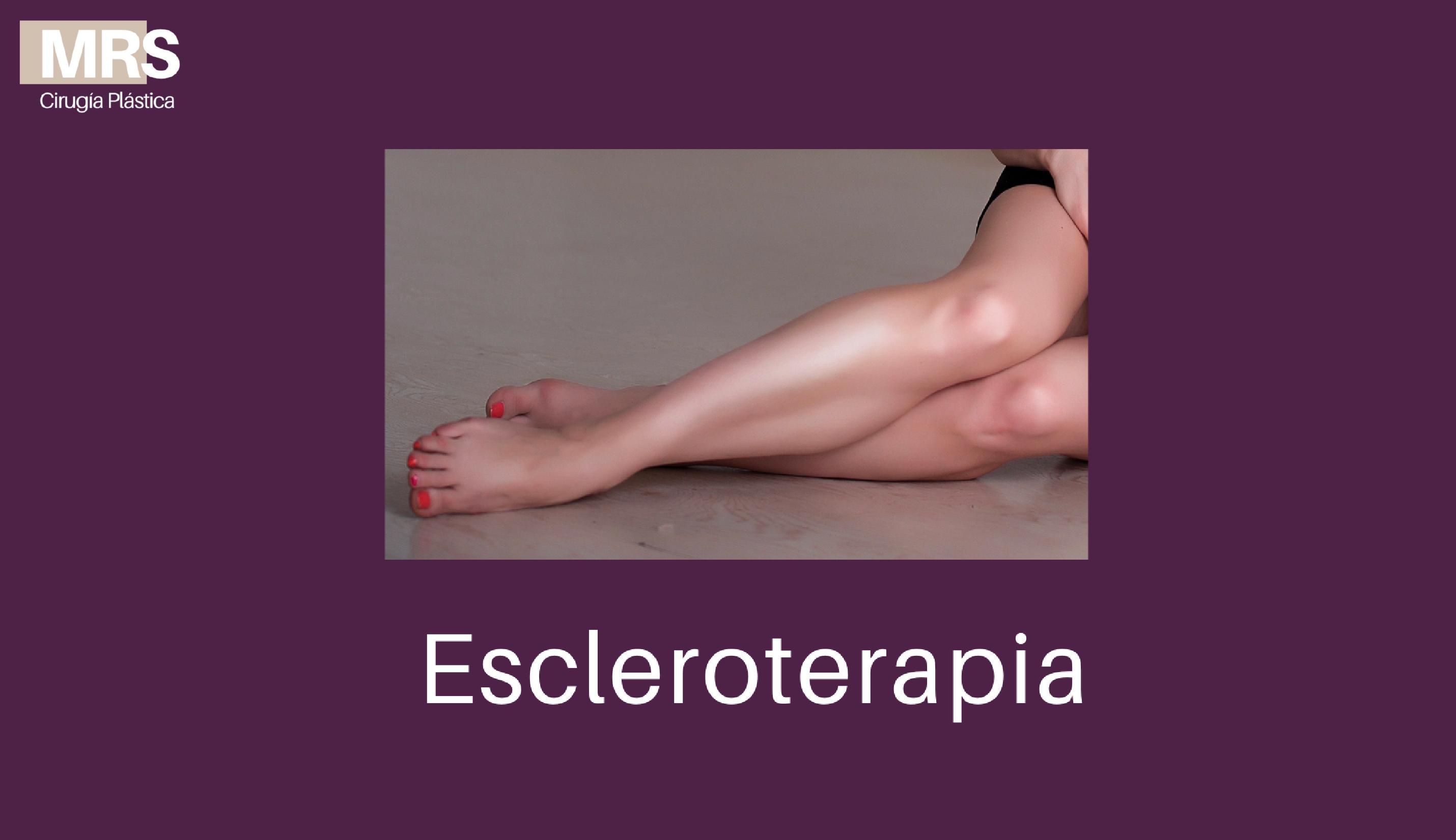 escleroterapia web-01