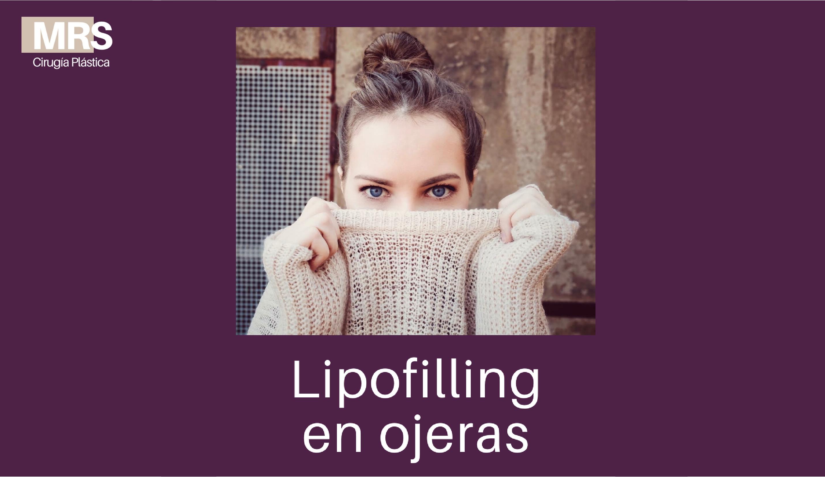LIPO OJERAS WEB-01